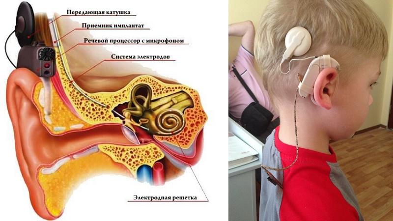 Задачи сурдопедагога на разных этапах помощи детям с кохлеарными имплантами